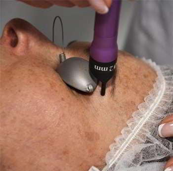depilacion cejas laser