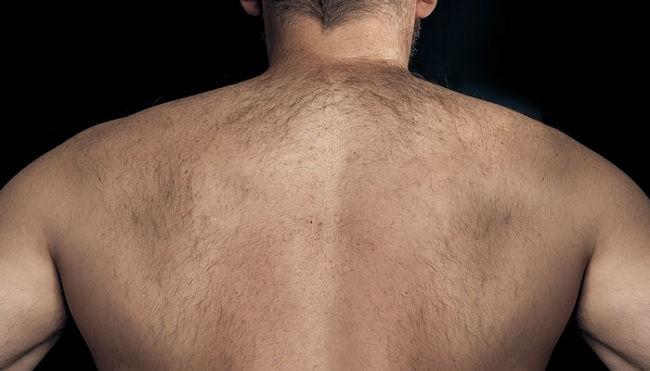 Eliminar Vellos Espalda