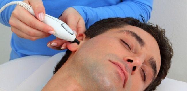 depilacion de las orejas laser
