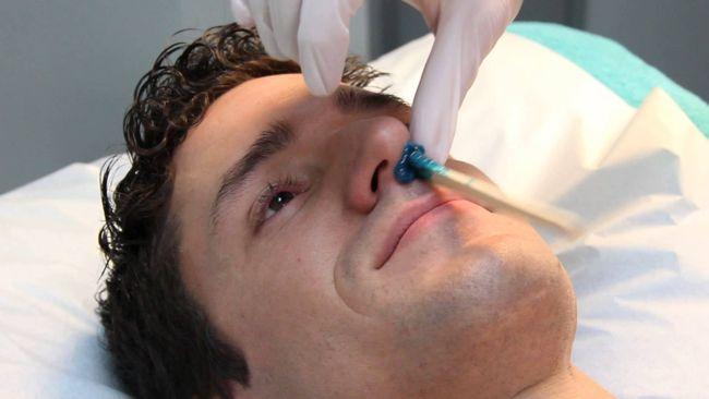 depilacion nariz